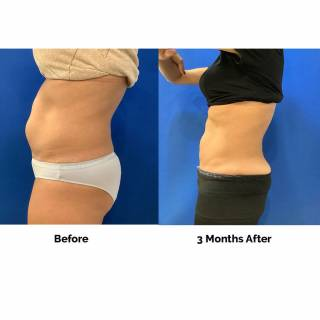 3 months before and after coolsculpting manhattan