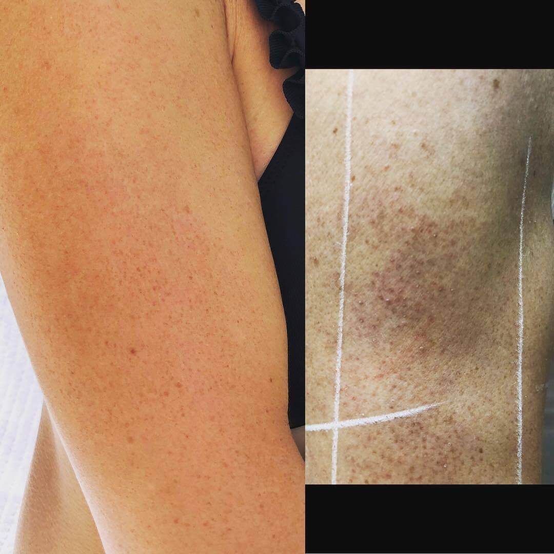 cool confidence keratosis pilaris before after