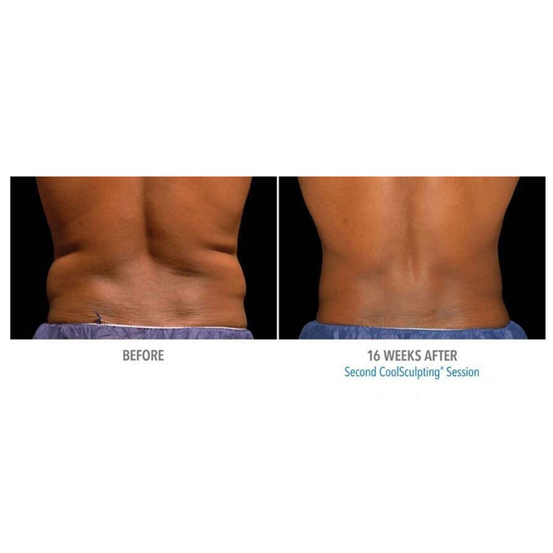 coolsculpting new york before after