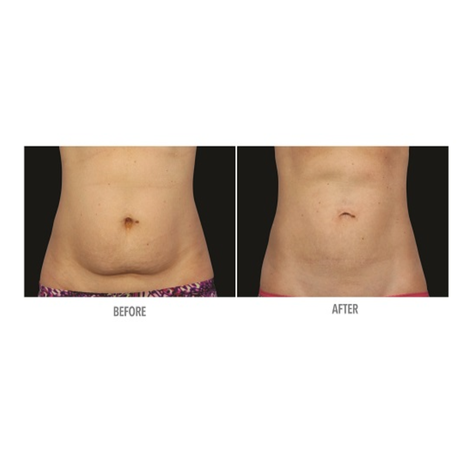 Coolsculpting Stomach Results