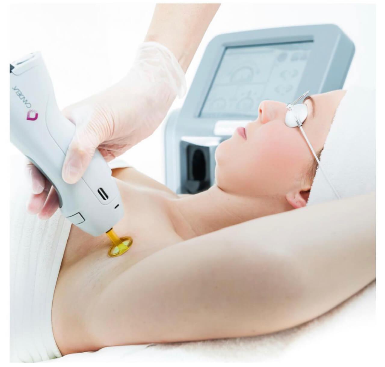 Keratosis-pilarus-treatment